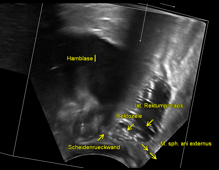 Perineal Sonographie 01